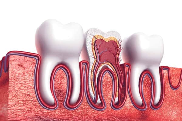 Root canal blurb image